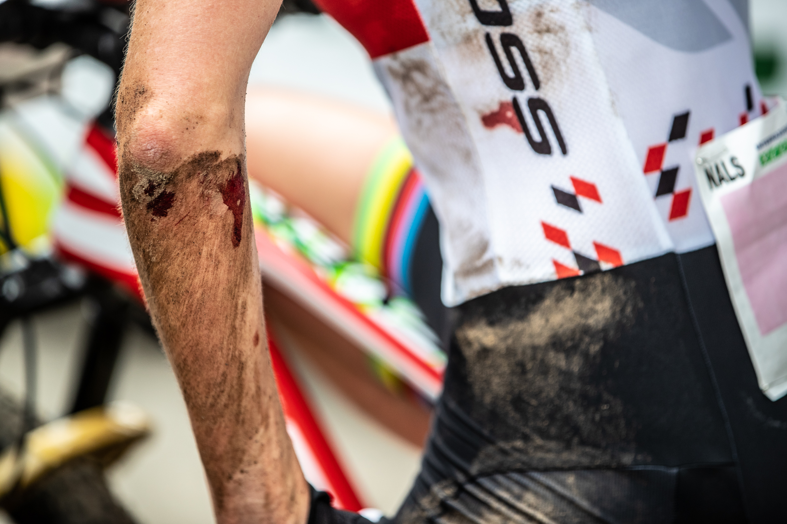 First appointment with Internazionali d'Italia in Nals. Maja włoszczowska shows the wounds after the race - Ph: Michele Mondini